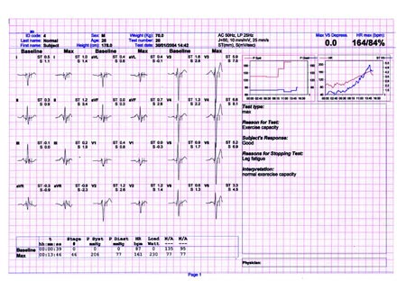 LunoSpiro  Модульное рабочее место для регистрации ЭКГ покоя, проведения стресс-ЭКГ и эргоспирометрии