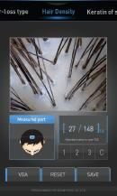 Анализ плотности волос