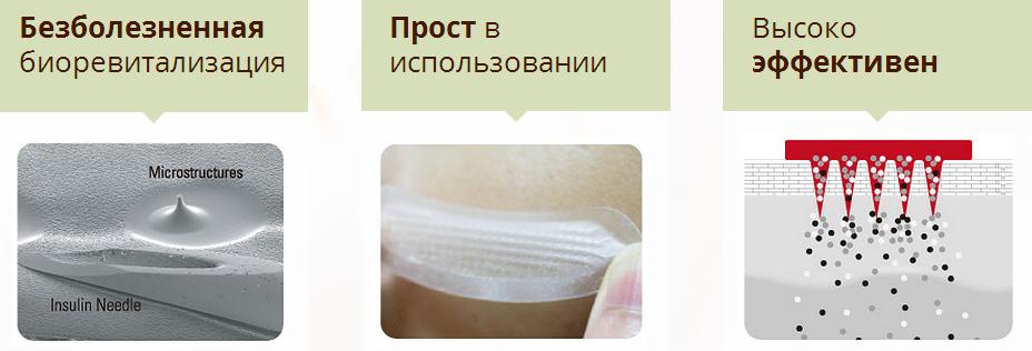 plastyir-Smart-Filler_Acropass_